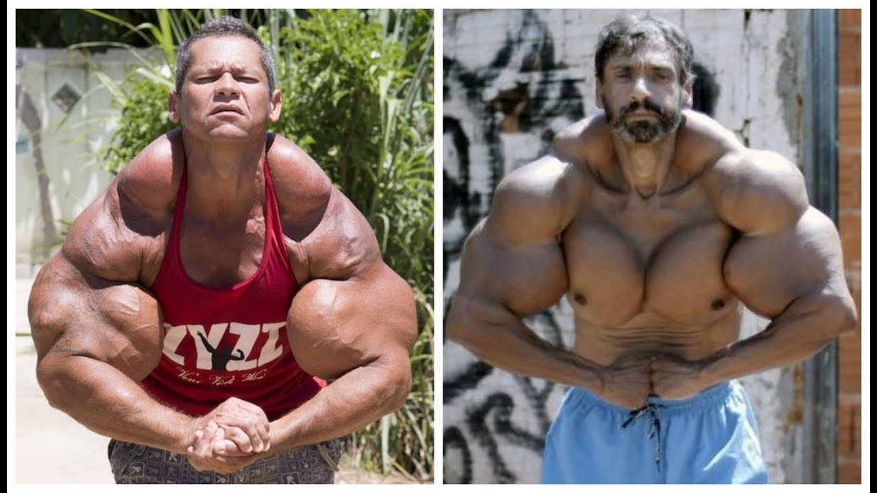 how to use synthol for bodybuilding