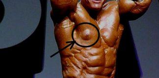 Warum man von Nolvadex (Tamoxifen) die Finger lassen sollte, wenn...